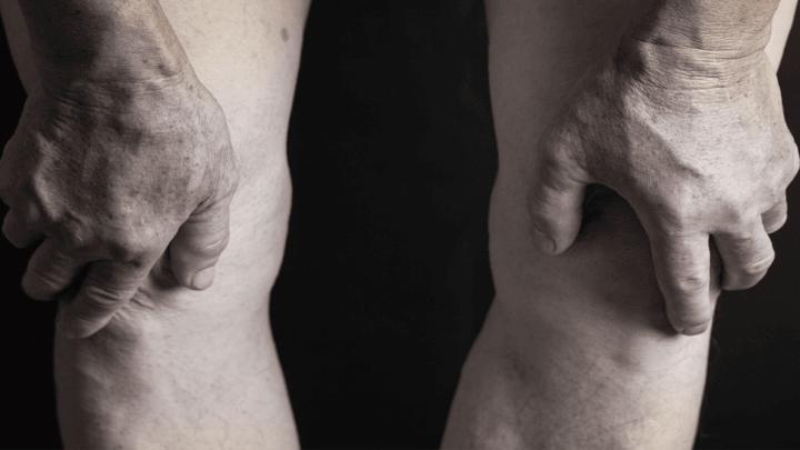 Uno studio rileva che la Sindrome di Down accelera l'invecchiamento muscolare